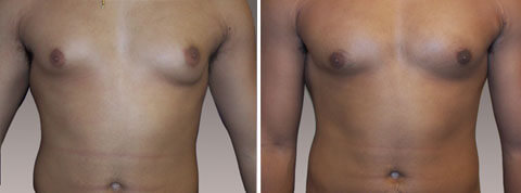 Gynecomastia Gallery - Before and After Photos - male patient 1 (front view)