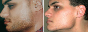 Hair Removal Gallery: Before and After Photos - male patient, left side view