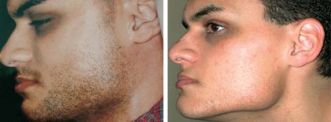 Yager Esthetics - Before and After Photos: Hair Removal