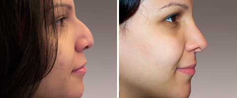 Nasal Surgery Before and After Photo Gallery: 27 year old woman (right side view)