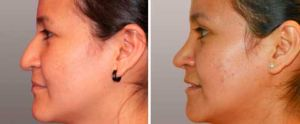 Nasal Surgery Before and After Photo Gallery: woman patient (left side view)