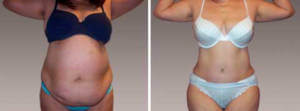 Abdominoplasty Gallery - Before and After Photos: female patient 10, front view