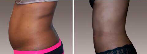 Abdominoplasty Gallery - Before and After Photos: female patient 11, left side view