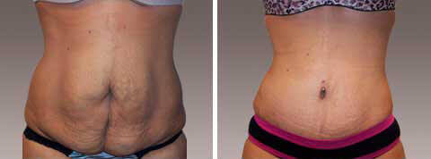 Abdominoplasty Gallery - Before and After Photos: female patient 12, front view