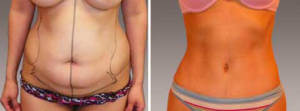 Abdominoplasty Gallery - Before and After Photos: female patient 15, front view