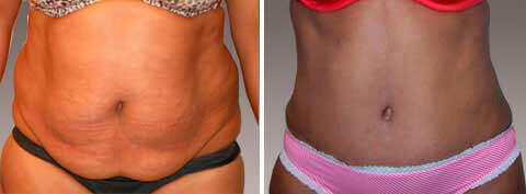 Abdominoplasty Gallery - Before and After Photos: female patient 16, front view