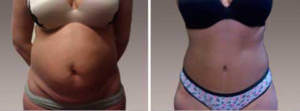 Abdominoplasty Gallery - Before and After Photos: female patient 17, front view