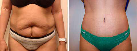 Abdominoplasty Gallery - Before and After Photos: female patient 18, front view