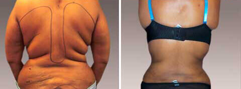 Abdominoplasty Gallery - Before and After Photos: female patient 4, back view