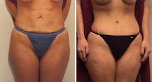 Abdominoplasty Gallery - Before and After Photos: female patient 7, front view