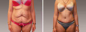 Abdominoplasty Gallery - Before and After Photos: female patient 8, front view