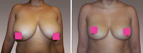 Breast Reduction Gallery: Before & After Photos - 29 year old woman, frontal view