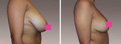Breast Reduction Gallery: Before & After Photos - woman patient, right side view