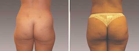 Fat Transfer/Buttock Reshaping Gallery: Before and After Photos - patient 3
