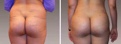 Fat Transfer/Buttock Reshaping Gallery: Before and After Photos - patient 5