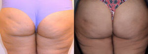Female Buttock, Before and After fat transfer treatment Photos - back view, patient 6