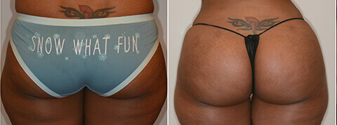 Female Buttock, Before and After fat transfer treatment Photos - back view, patient 7
