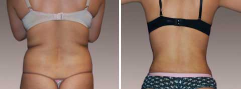 Liposuction Gallery - Before and After Treatment Photos: female (back view)