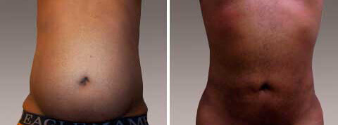 Liposuction Gallery - Before and After Treatment Photos: man,front view