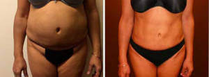 Liposuction Gallery - Before and After Treatment Photos: woman patient, front view