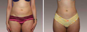Liposuction Gallery - Before and After Treatment Photos: female patient (front view)