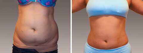 Liposuction Gallery - Before and After Treatment Photos: woman patient (front view)