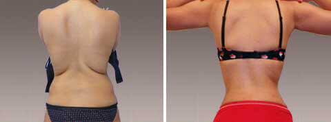 Liposuction Gallery - Before and After Treatment Photos: woman (back view)