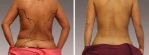 Liposuction Gallery - Before and After Treatment Photos: female, back view