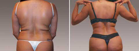 Mommy Makeover Gallery - Before and After photos - female patient (back view)