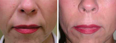 Yager Esthetics - Before and After Photos: Radiesse