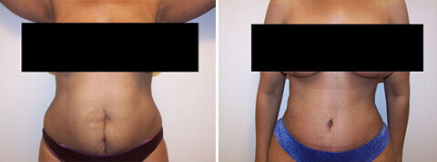 Female tummy tuck, Before and After Treatment Photos: female patient 19, front view