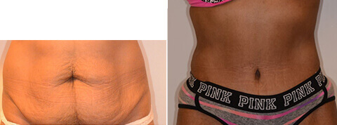 Female tummy tuck, Before and After Treatment Photos: female patient 21, front view